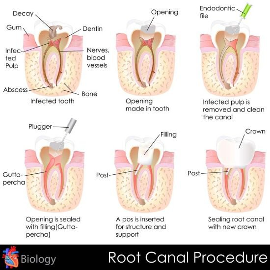 Root Canal riverside