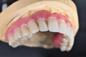 Dental Veneers Procedure step 1