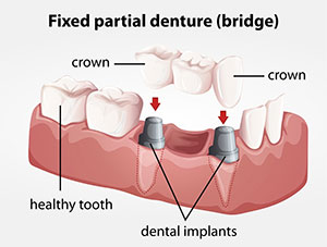 riverside Permanent dental bridges