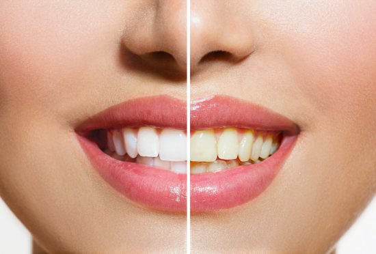 teeth whitening riverside ca