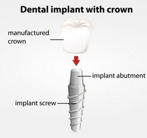 Dental Implants Vs. Dental Bridges – how to choose